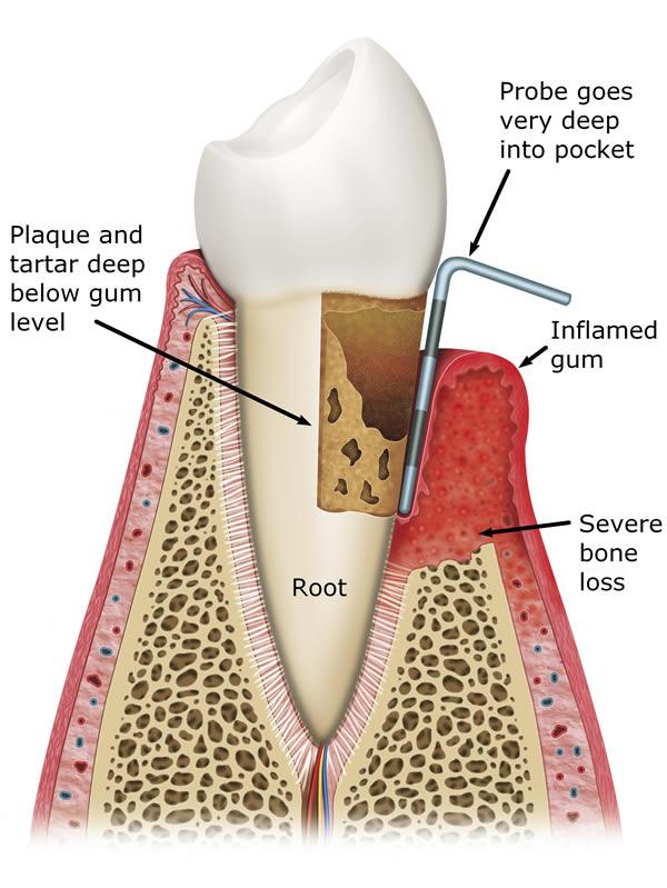 Gum Disease Treatment In Leeds At Street Lane Dental