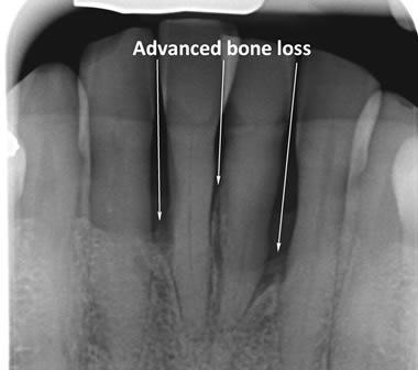 Advanced bone loss around lower front teeth