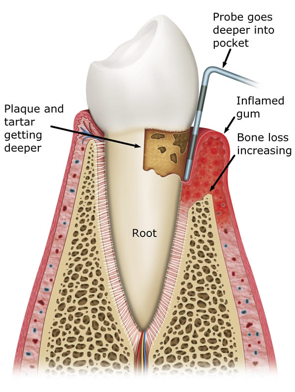 Gum Disease Treatment In Leeds At Street Lane Dental Implant Clinic